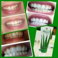 Gel dental, trata de cáriess, branqueador dos dentes, previne e trata Aftas, combate inflamações e i