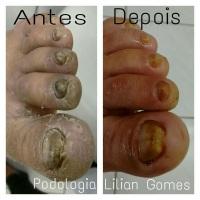 PODOLOGIA Tratamento Onicomicose e fissuras e pele ressecada