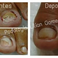 PODOLOGIA Tratamento Onicomicose